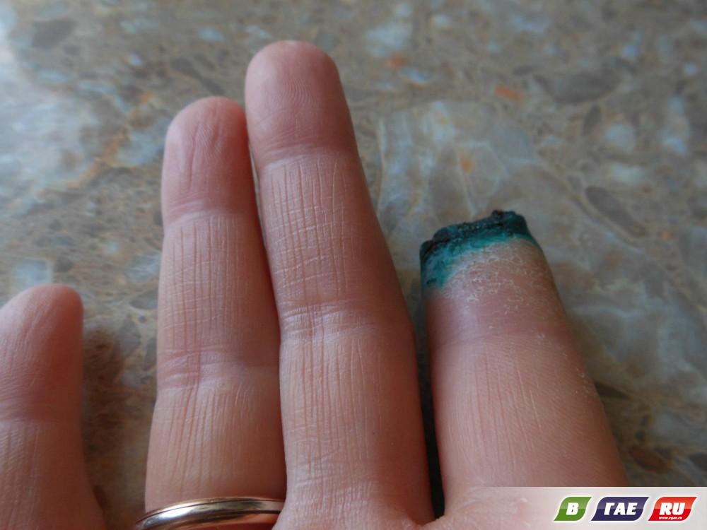 Женщина потеряла палец на горнолыжном курорте «Долина» в Кувандыке